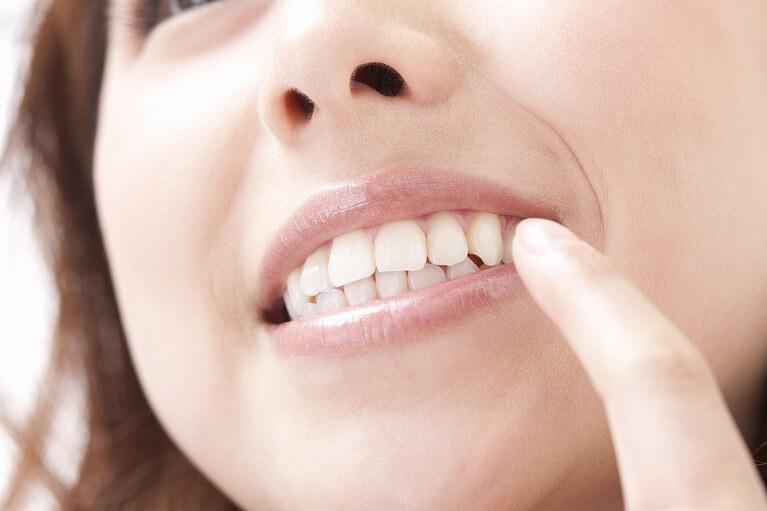 歯を美しく見せることのメリット